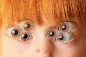 yeux en triple sur visage petite fille